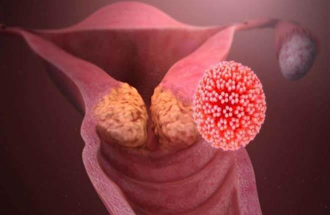 papilloma virus che cos e
